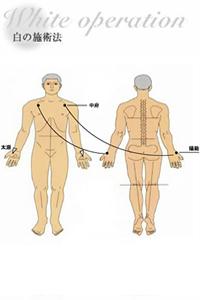 レインボー療法